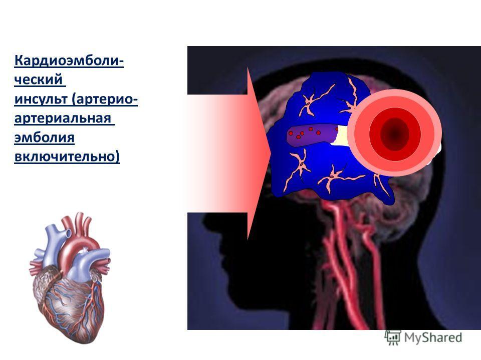 Кардиоэмболи- ческий инсульт (артерио- артериальная эмболия включительно)
