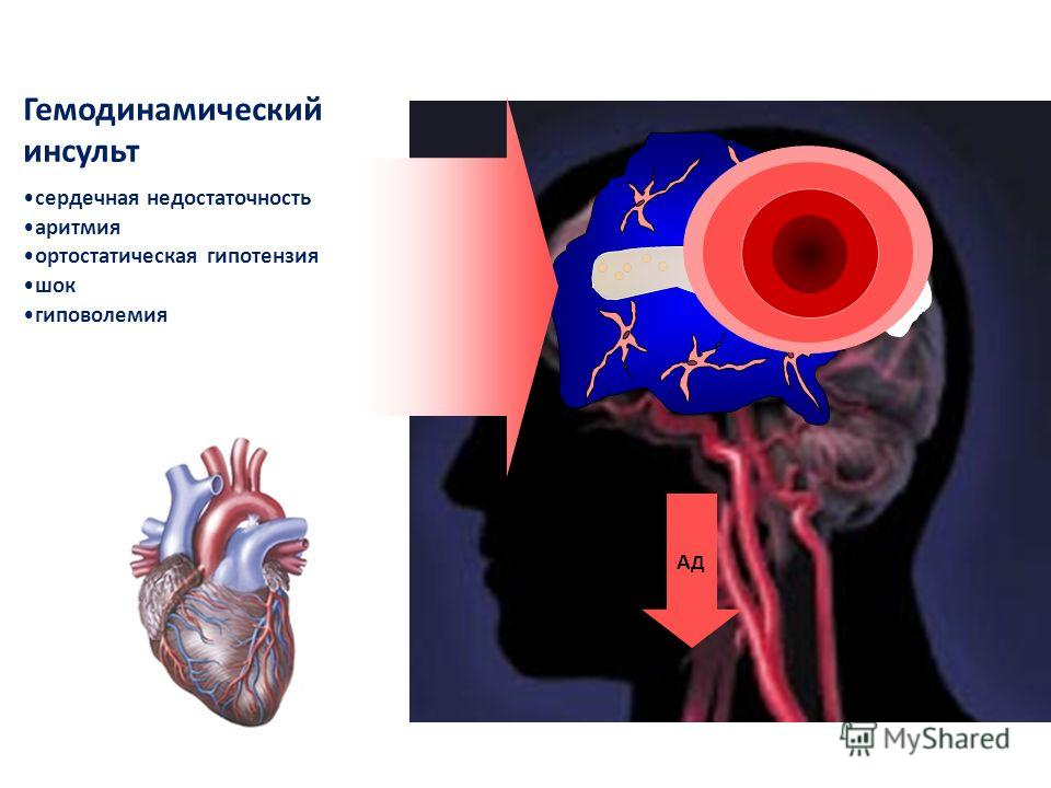 Гемодинамический инсульт А Д сердечная недостаточность аритмия ортостатическая гипотензия шок гиповолемия