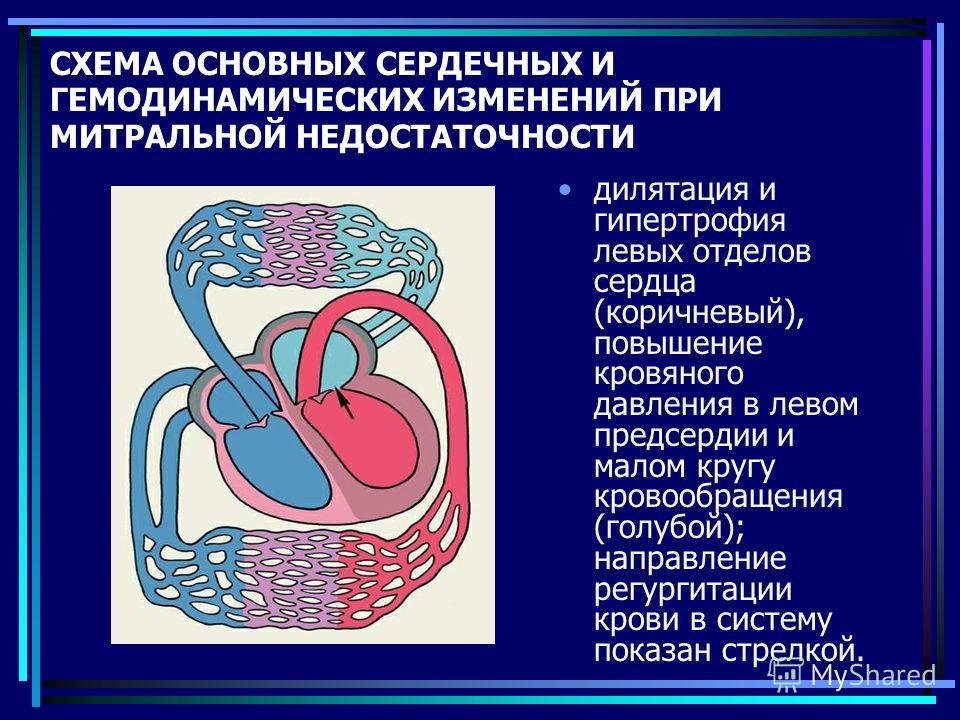 СХЕМА ОСНОВНЫХ СЕРДЕЧНЫХ И ГЕМОДИНАМИЧЕСКИХ ИЗМЕНЕНИЙ ПРИ МИТРАЛЬНОЙ НЕДОСТАТОЧНОСТИ дилятация и гипертрофия левых отделов сердца (коричневый), повышение кровяного давления в левом предсердии и малом кругу кровообращения (голубой); направление регург