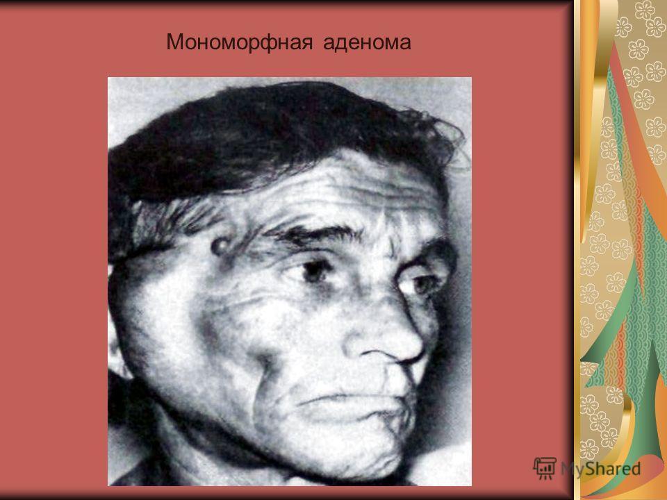 Мономорфная аденома