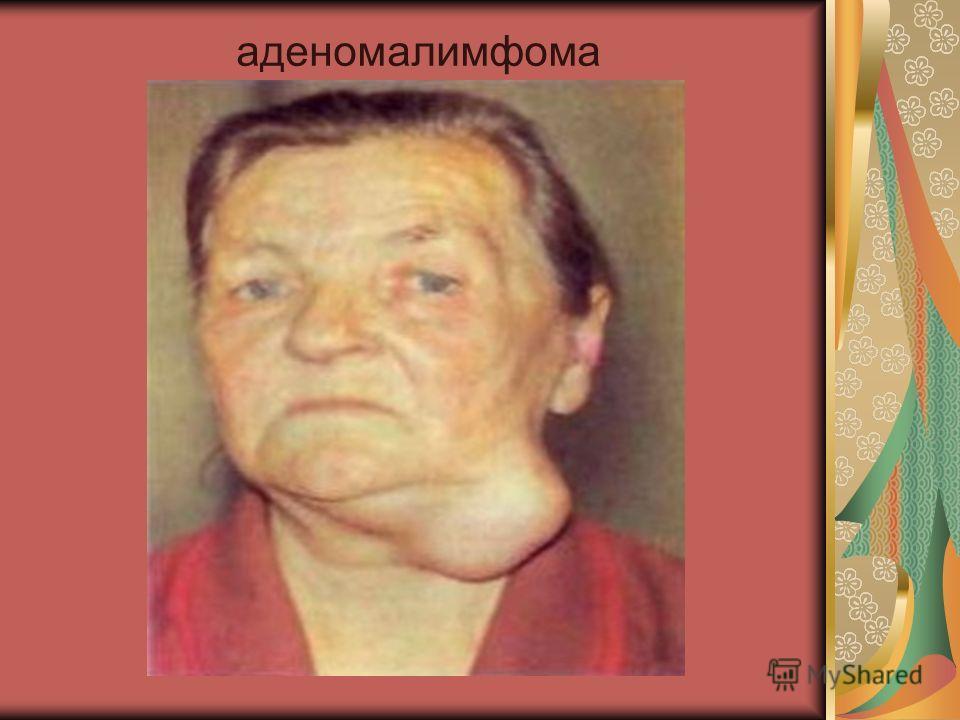 аденомалимфома