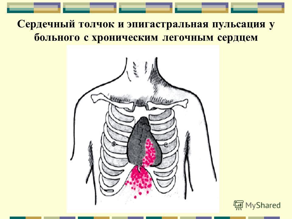 Сердечный толчок и эпигастральная пульсация у больного с хроническим легочным сердцем