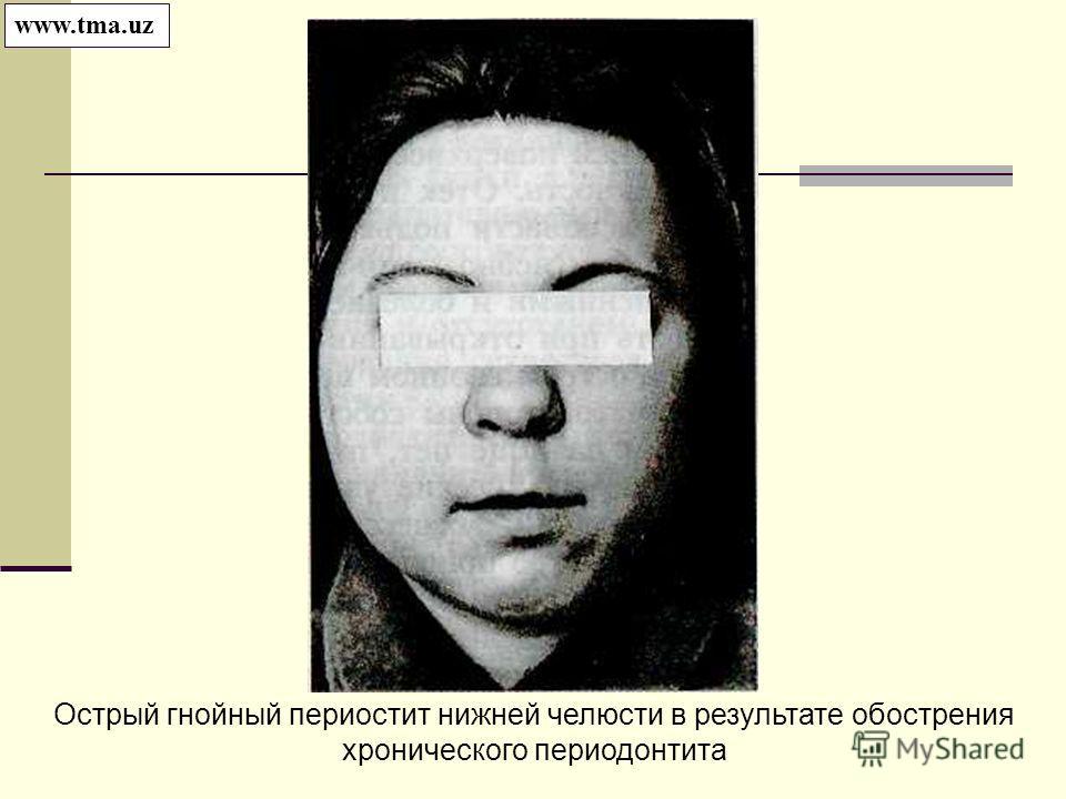 Острый гнойный периостит нижней челюсти в результате обострения хронического периодонтита www.tma.uz
