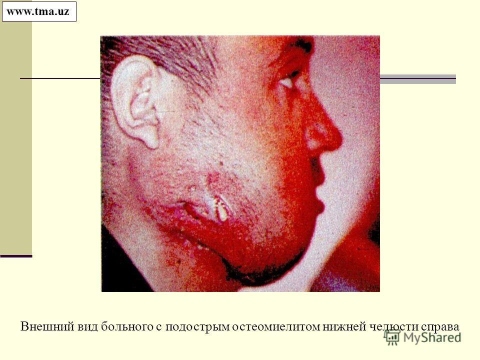 Внешний вид больного с подострым остеомиелитом нижней челюсти справа www.tma.uz