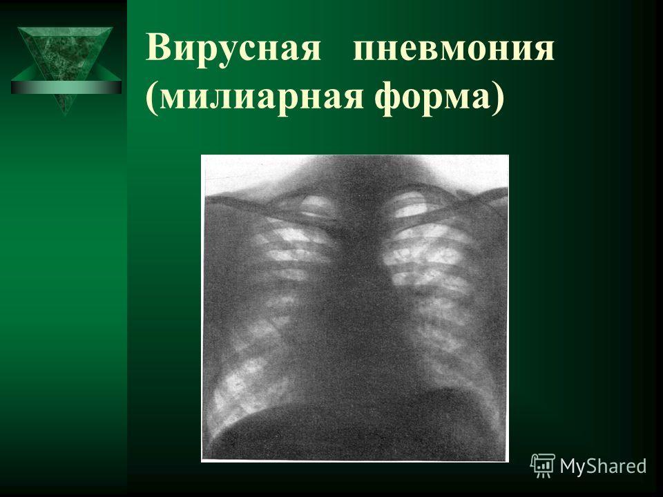 Вирусная пневмония (милиарная форма)
