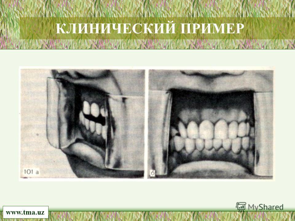 www.tma.uz КЛИНИЧЕСКИЙ ПРИМЕР