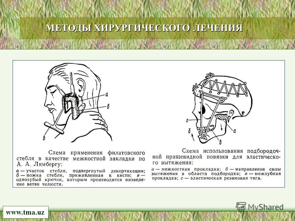 www.tma.uz МЕТОДЫ ХИРУРГИЧЕСКОГО ЛЕЧЕНИЯ