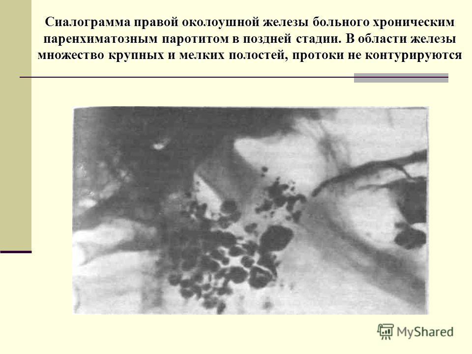 Сиалограмма правой околоушной железы больного хроническим паренхиматозным паротитом в поздней стадии. В области железы множество крупных и мелких полостей, протоки не контурируются