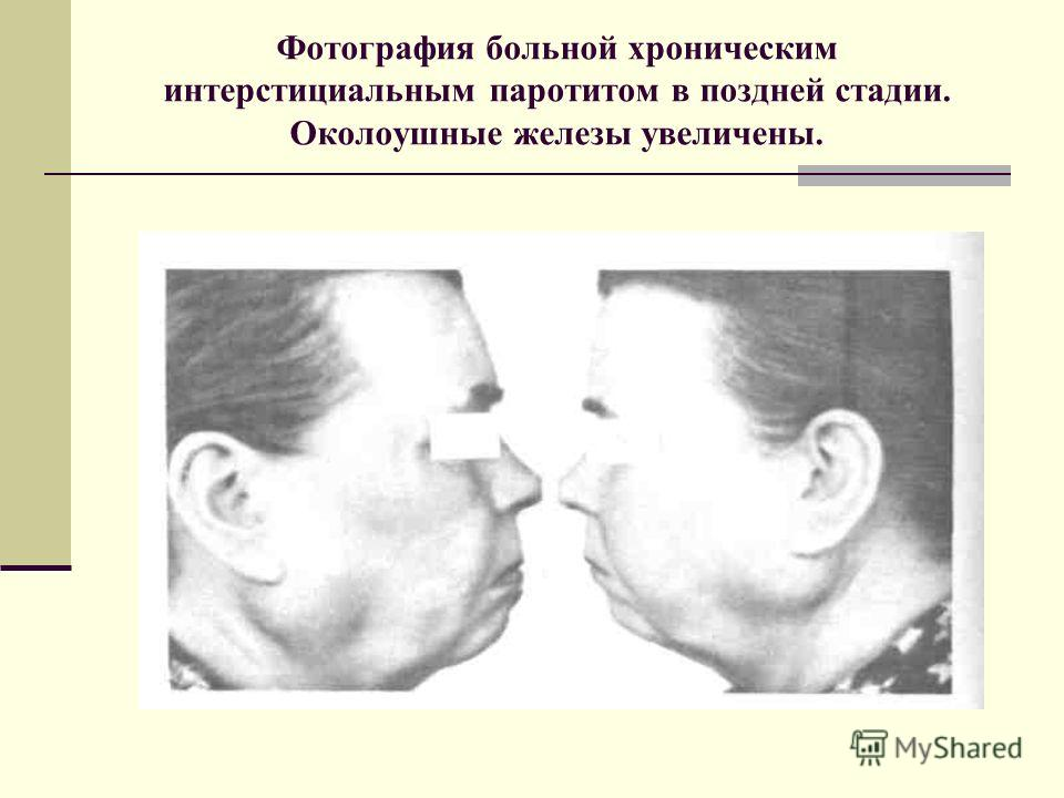 Фотография больной хроническим интерстициальным паротитом в поздней стадии. Околоушные железы увеличены.
