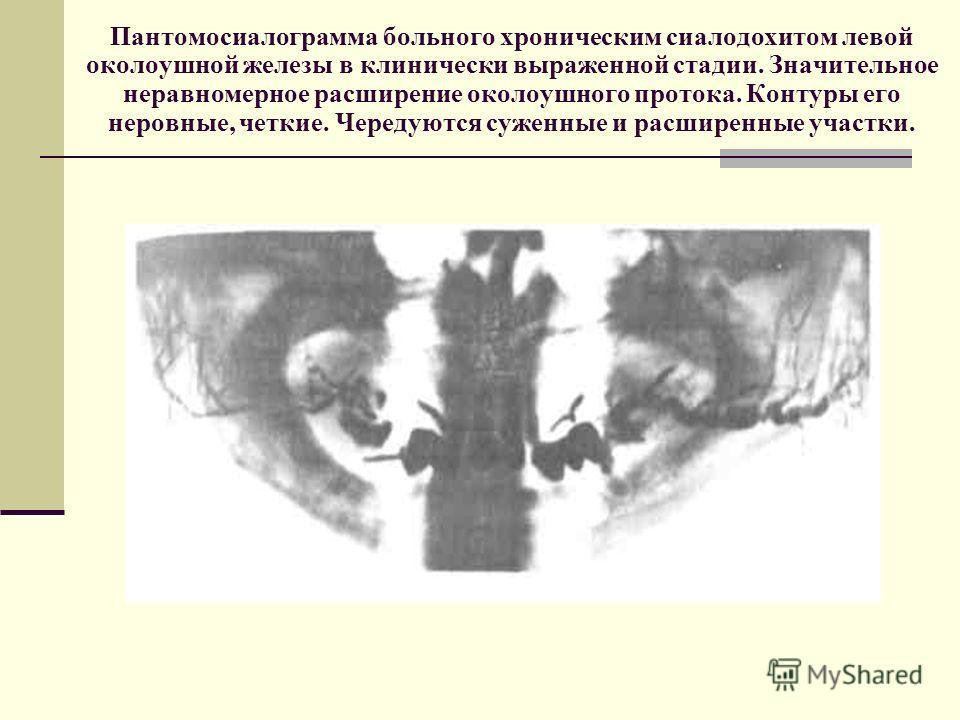 Пантомосиалограмма больного хроническим сиалодохитом левой околоушной железы в клинически выраженной стадии. Значительное неравномерное расширение околоушного протока. Контуры его неровные, четкие. Чередуются суженные и расширенные участки.