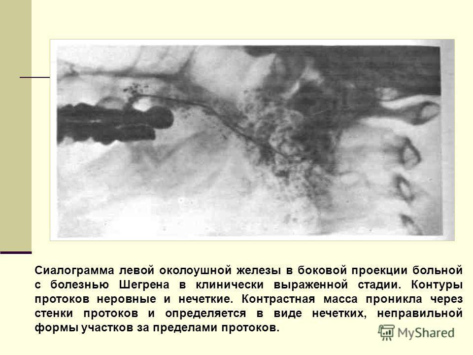 Сиалограмма левой околоушной железы в боковой проекции больной с болезнью Шегрена в клинически выраженной стадии. Контуры протоков неровные и нечеткие. Контрастная масса проникла через стенки протоков и определяется в виде нечетких, неправильной форм