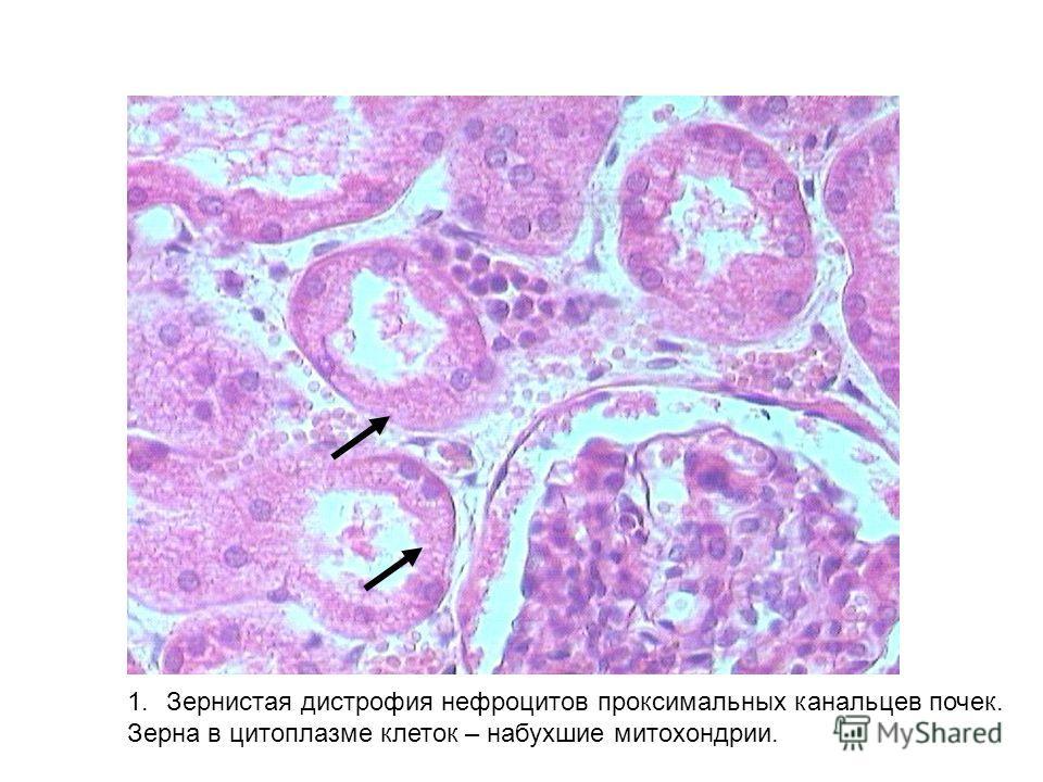 1.Зернистая дистрофия нефроцитов проксимальных канальцев почек. Зерна в цитоплазме клеток – набухшие митохондрии.