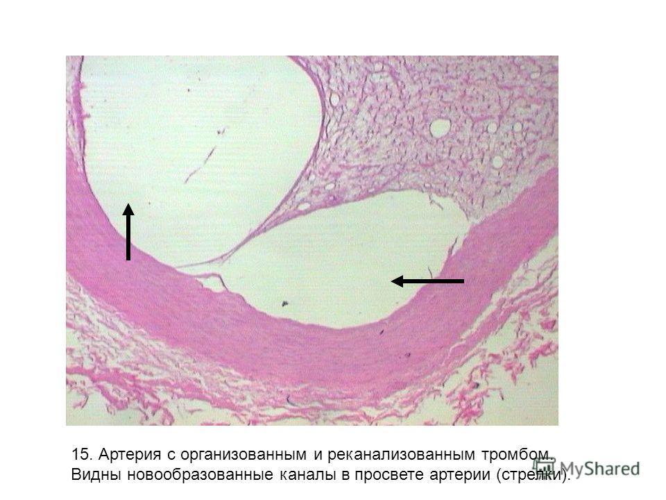 15. Артерия с организованным и реканализованным тромбом. Видны новообразованные каналы в просвете артерии (стрелки).