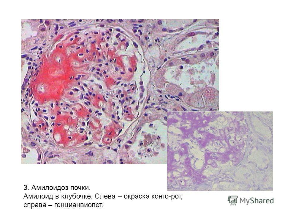 3. Амилоидоз почки. Амилоид в клубочке. Слева – окраска конго-рот, справа – генцианвиолет.