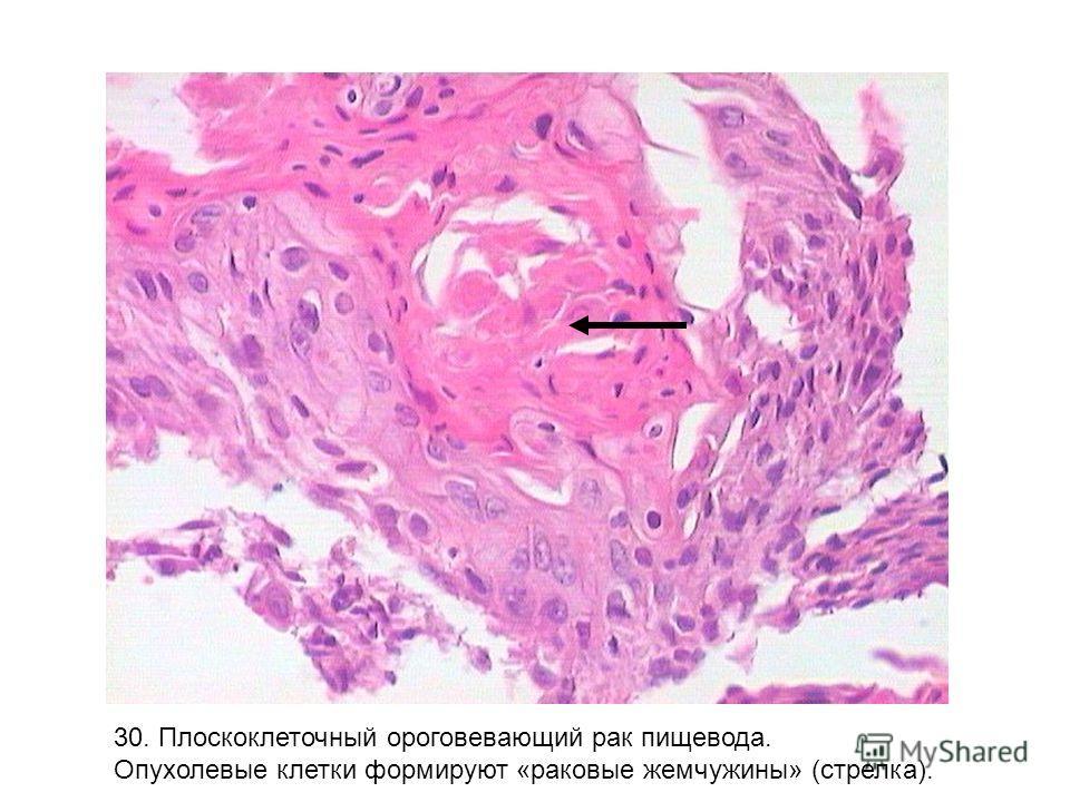 30. Плоскоклеточный ороговевающий рак пищевода. Опухолевые клетки формируют «раковые жемчужины» (стрелка).