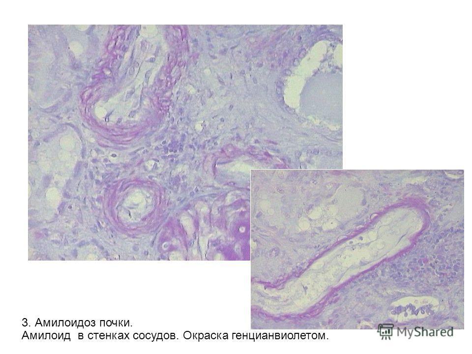 3. Амилоидоз почки. Амилоид в стенках сосудов. Окраска генцианвиолетом.