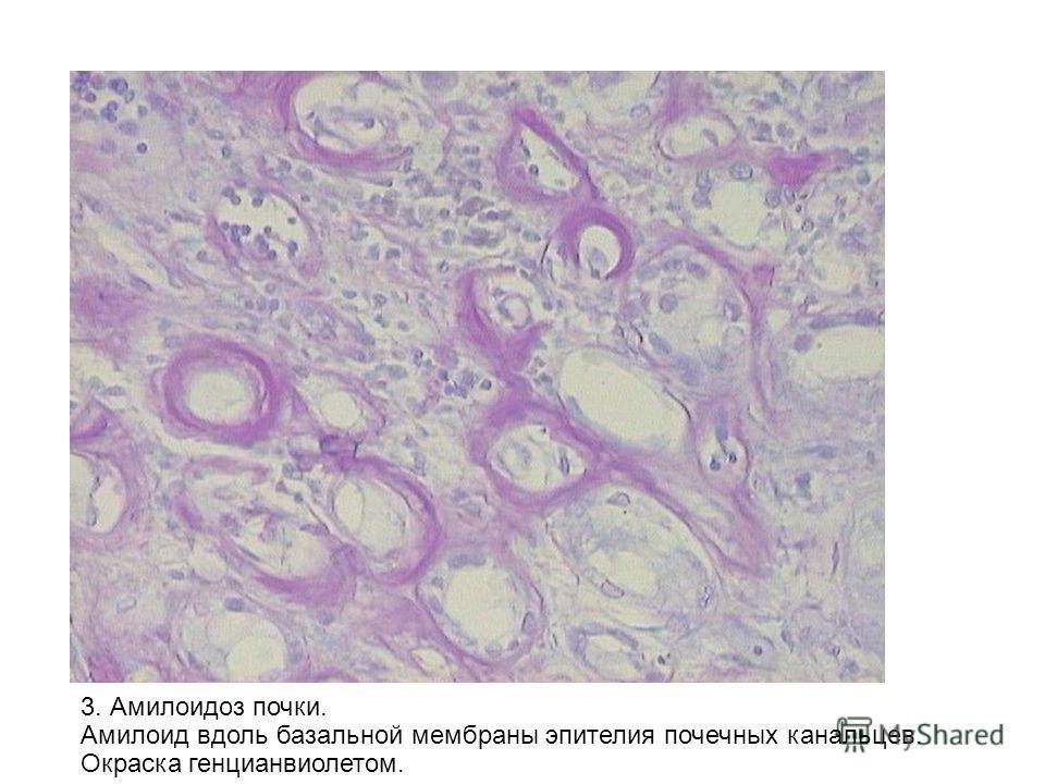 3. Амилоидоз почки. Амилоид вдоль базальной мембраны эпителия почечных канальцев. Окраска генцианвиолетом.