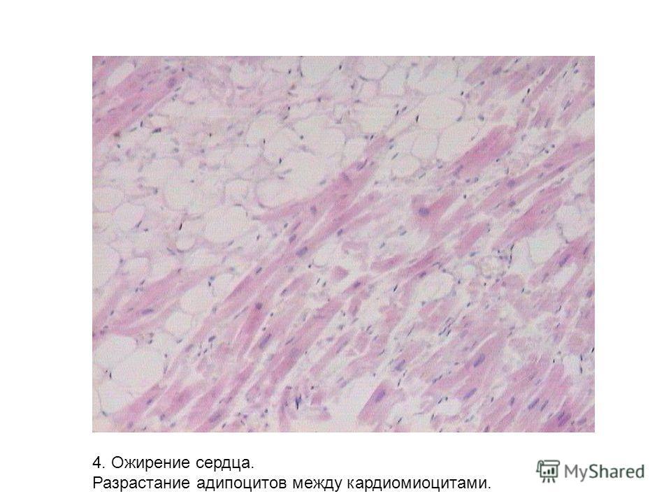 4. Ожирение сердца. Разрастание адипоцитов между кардиомиоцитами.