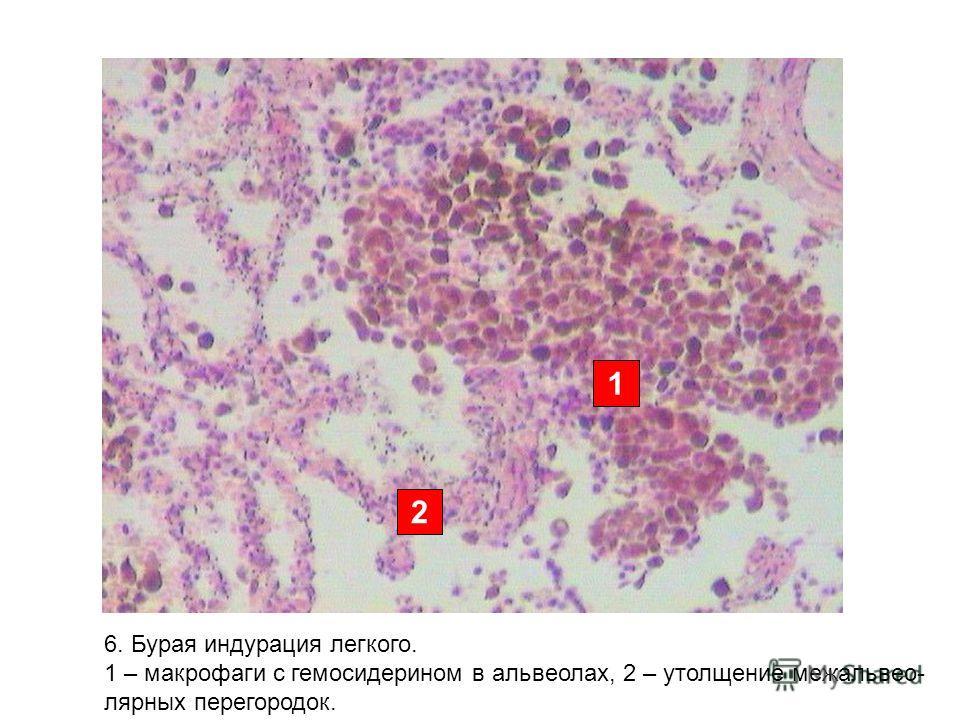 2 1 6. Бурая индурация легкого. 1 – макрофаги с гемосидерином в альвеолах, 2 – утолщение межальвео- лярных перегородок.