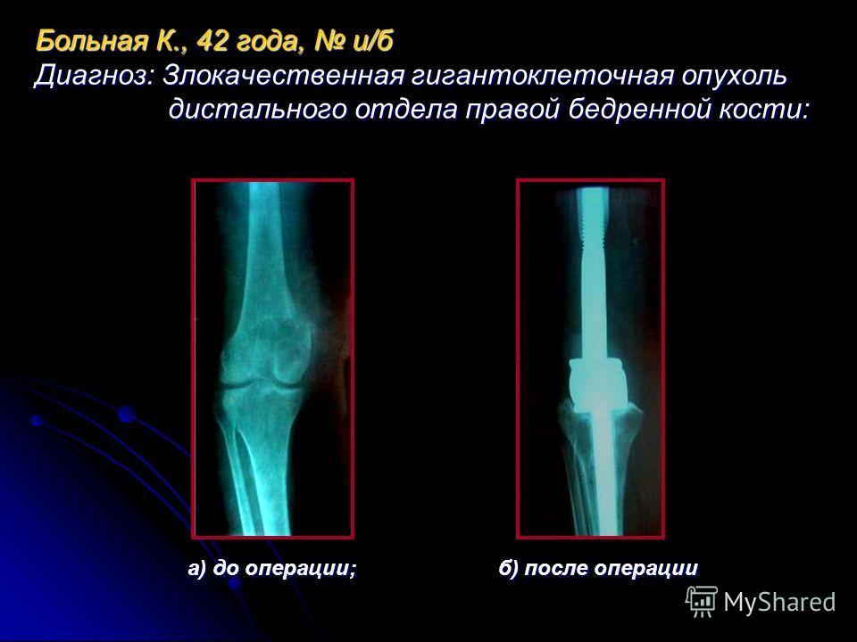 Больная К., 42 года, и/б Диагноз: Злокачественная гигантоклеточная опухоль дистального отдела правой бедренной кости: а) до операции; б) после операции
