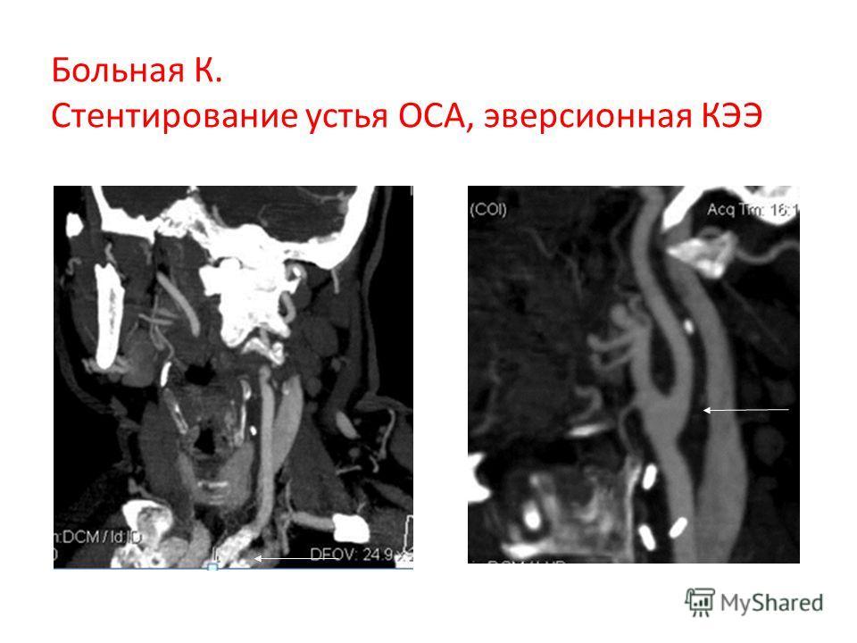 Больная К. Стентирование устья ОСА, эверсионная КЭЭ