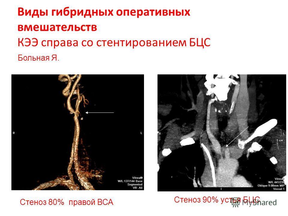 Виды гибридных оперативных вмешательств КЭЭ справа со стентированием БЦС Стеноз 90% устья БЦС Cтеноз 80% правой ВСА Больная Я.