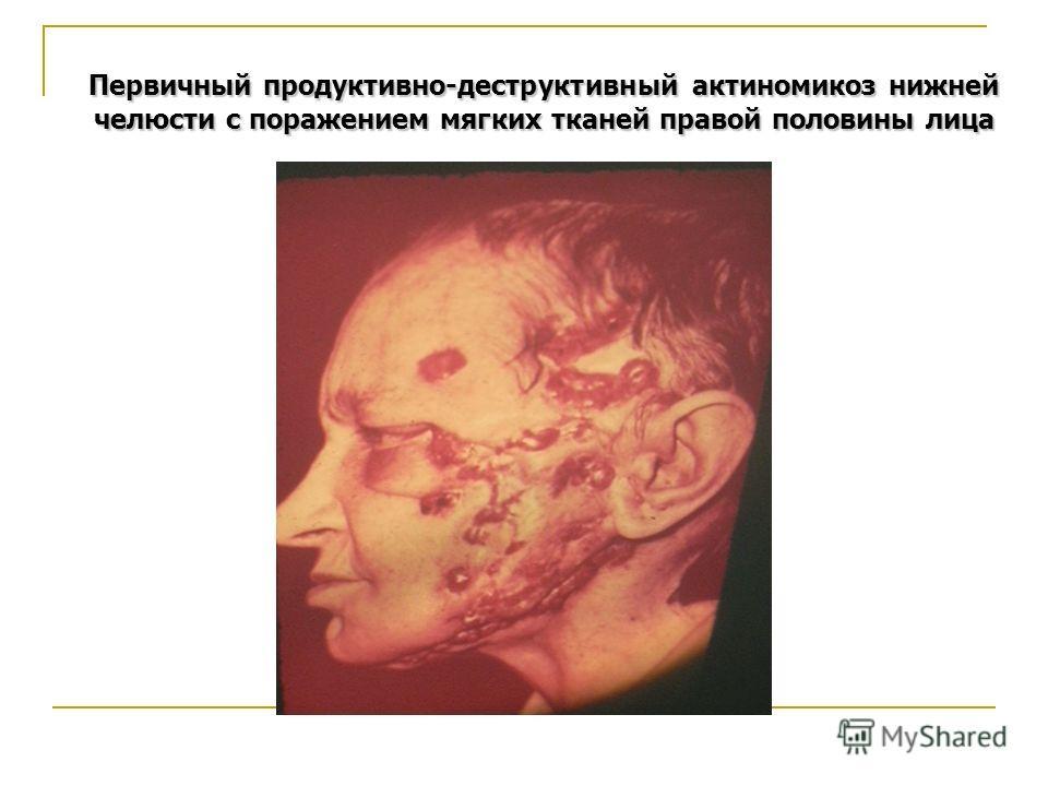 Первичный продуктивно-деструктивный актиномикоз нижней челюсти с поражением мягких тканей правой половины лица