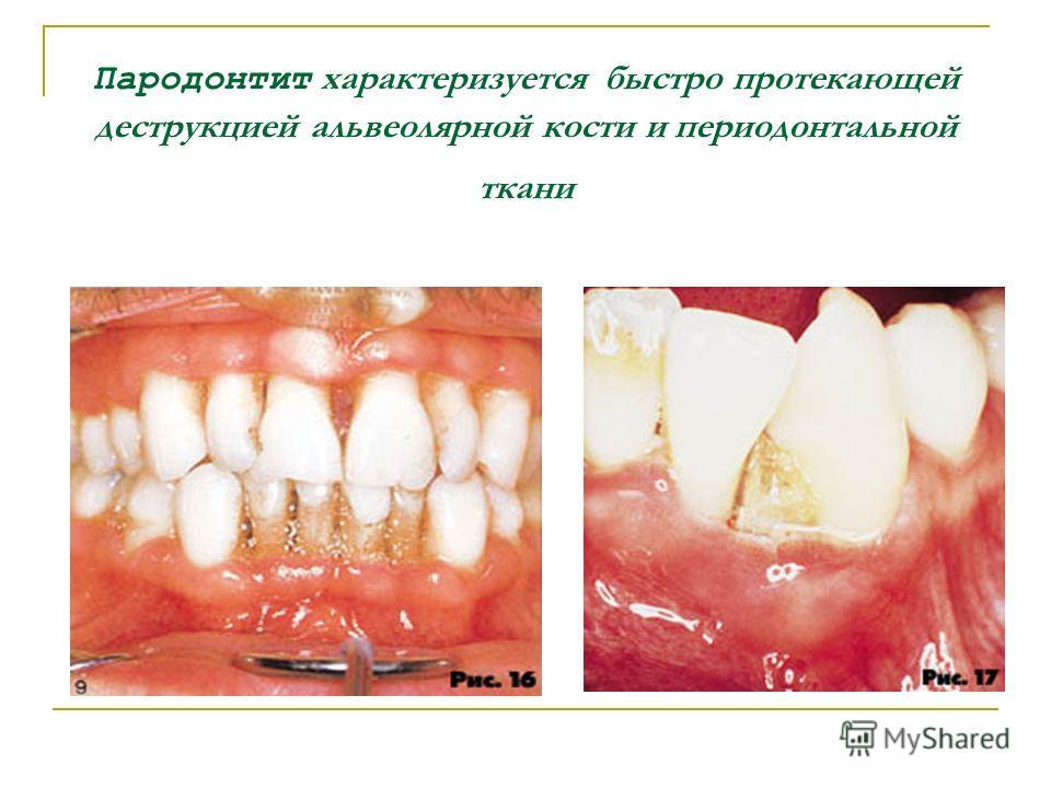 Пародонтит характеризуется быстро протекающей деструкцией альвеолярной кости и периодонтальной ткани
