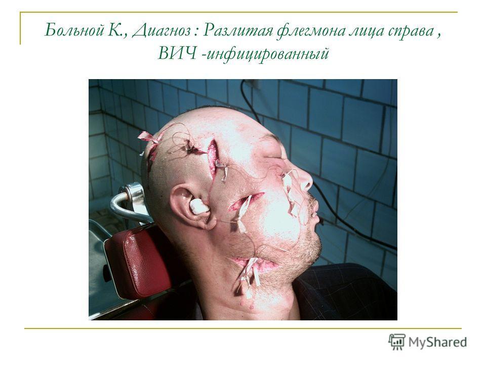 Больной К., Диагноз : Разлитая флегмона лица справа, ВИЧ -инфицированный