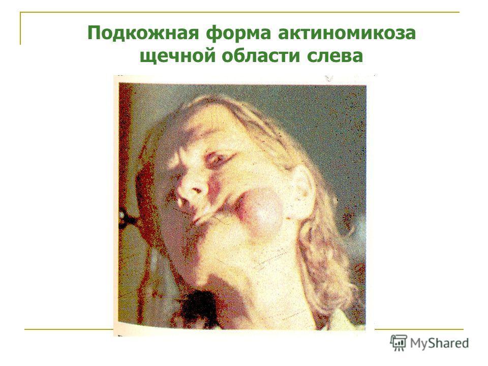 Подкожная форма актиномикоза щечной области слева