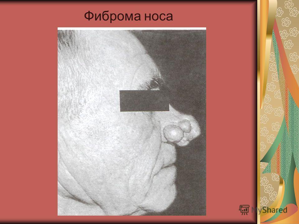 Фиброма носа