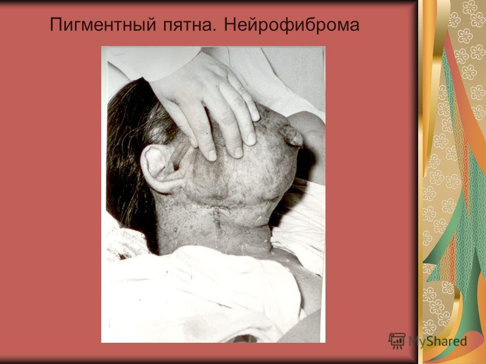 Пигментный пятна. Нейрофиброма