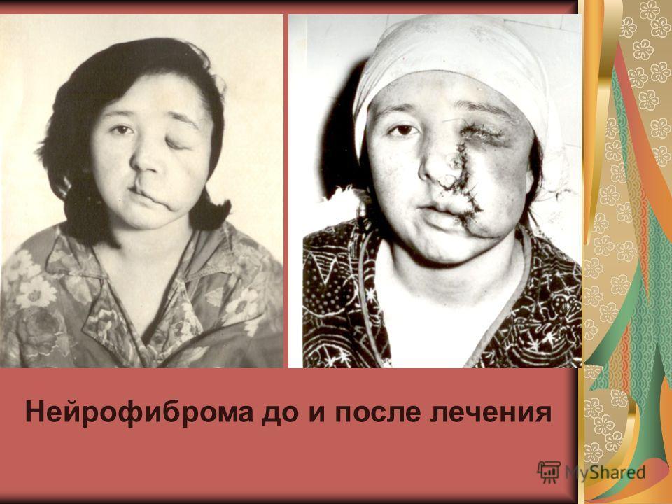 Нейрофиброма до и после лечения
