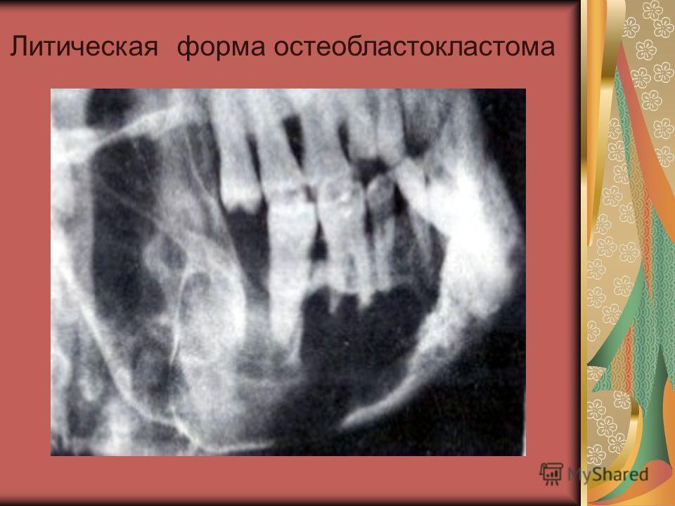 Литическая форма остеобластокластома