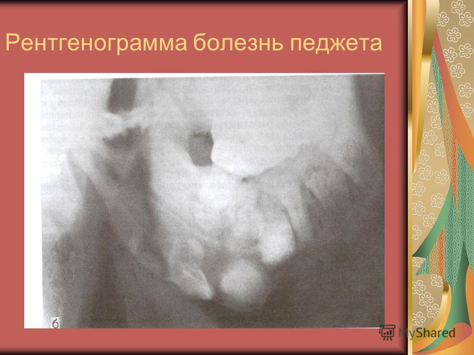 Рентгенограмма болезнь педжета