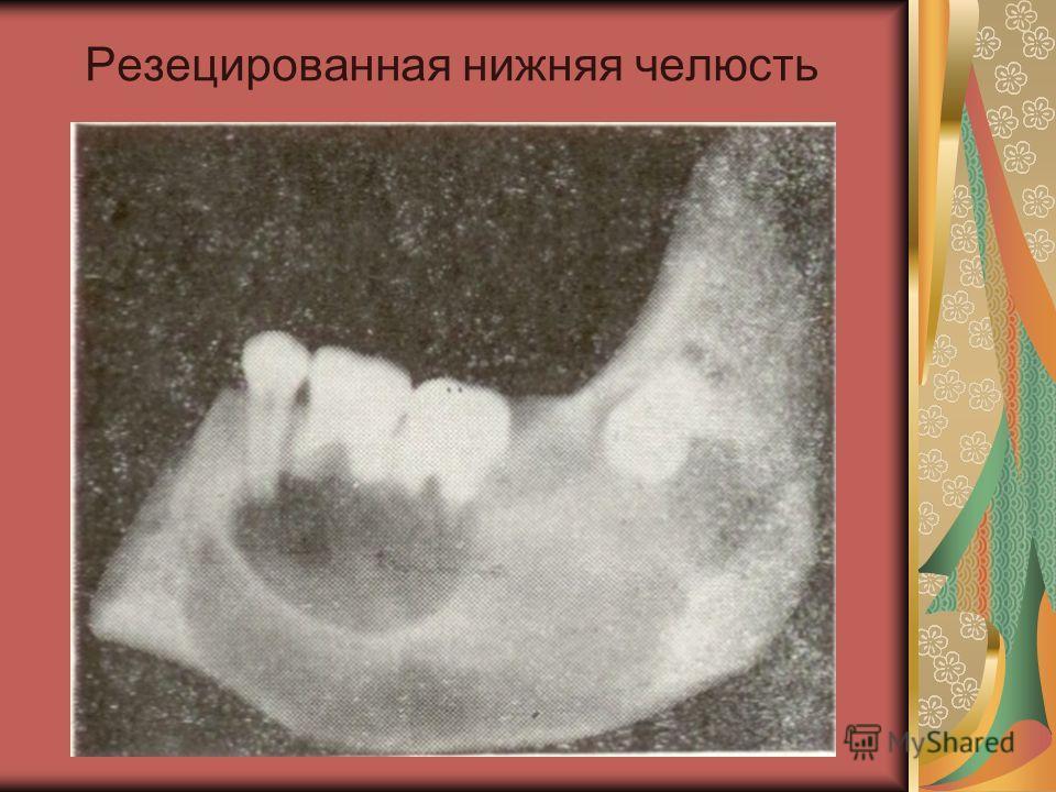Резецированная нижняя челюсть