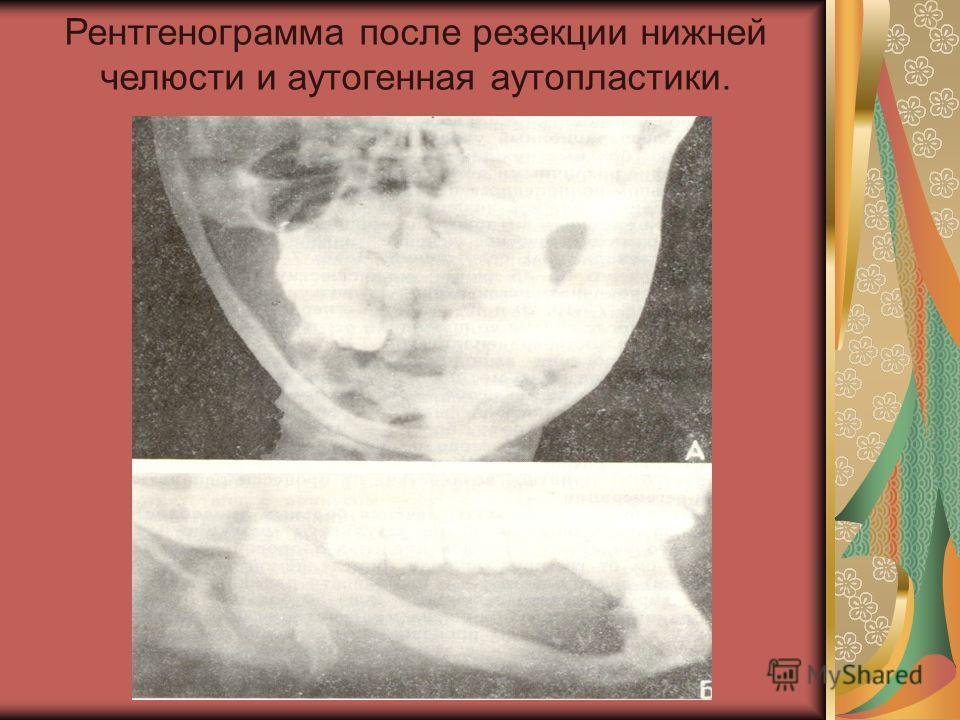 Рентгенограмма после резекции нижней челюсти и аутогенная аутопластики.