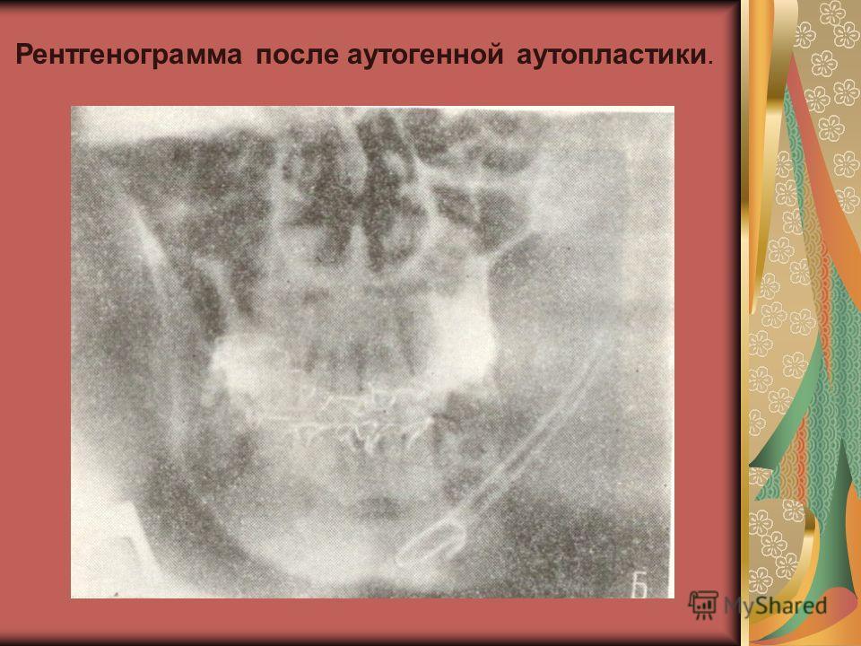Рентгенограмма после аутогенной аутопластики.