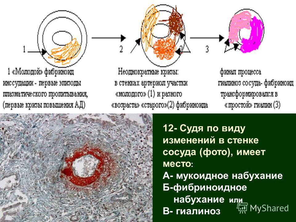 12- Судя по виду изменений в стенке сосуда (фото), имеет место : А- мукоидное набухание Б-фибриноидное набухание или В- гиалиноз