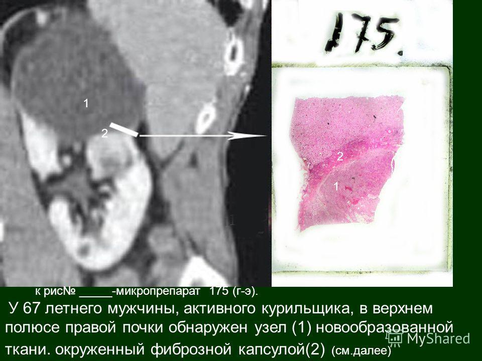 к рис _____-микропрепарат 175 (г-э). У 67 летнего мужчины, активного курильщика, в верхнем полюсе правой почки обнаружен узел (1) новообразованной ткани. окруженный фиброзной капсулой(2) (см.далее) 1 2 1 2
