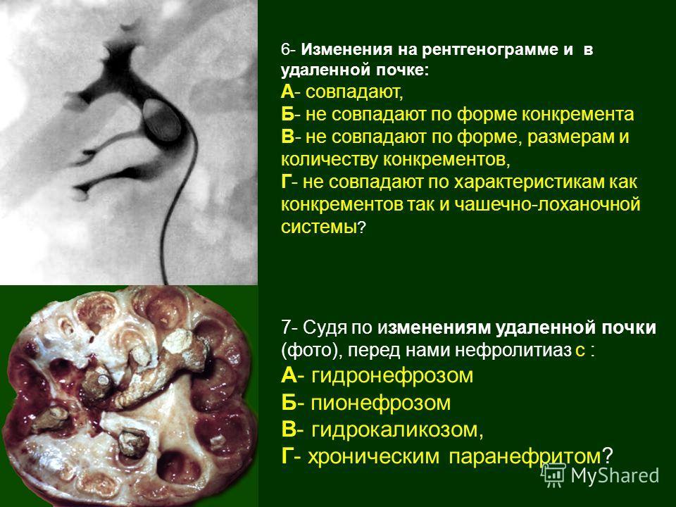 6- Изменения на рентгенограмме и в удаленной почке: А- совпадают, Б- не совпадают по форме конкремента В- не совпадают по форме, размерам и количеству конкрементов, Г- не совпадают по характеристикам как конкрементов так и чашечно-лоханочной системы