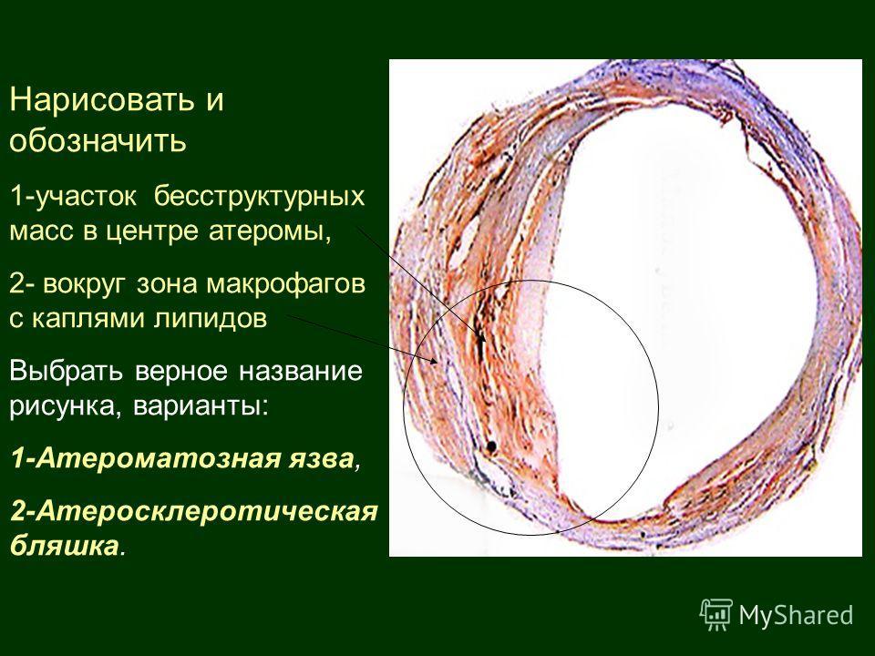 Нарисовать и обозначить 1-участок бесструктурных масс в центре атеромы, 2- вокруг зона макрофагов с каплями липидов Выбрать верное название рисунка, варианты: 1-Атероматозная язва, 2-Атеросклеротическая бляшка.