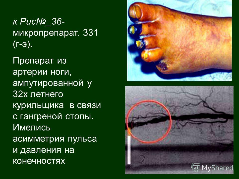 к Рис_36- микропрепарат. 331 (г-э). Препарат из артерии ноги, ампутированной у 32х летнего курильщика в связи с гангреной стопы. Имелись асимметрия пульса и давления на конечностях