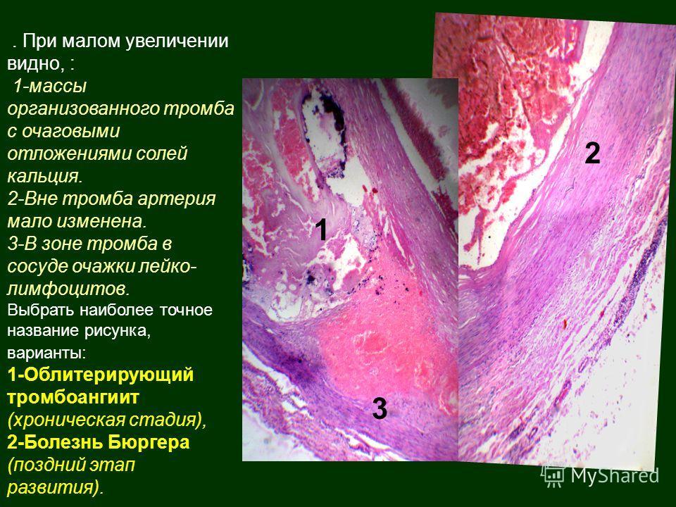. При малом увеличении видно, : 1-массы организованного тромба с очаговыми отложениями солей кальция. 2-Вне тромба артерия мало изменена. 3-В зоне тромба в сосуде очажки лейко- лимфоцитов. Выбрать наиболее точное название рисунка, варианты: 1-Облитер