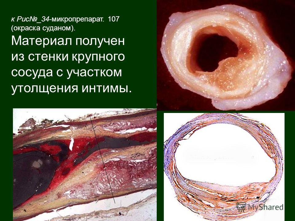 к Рис_34-микропрепарат. 107 (окраска суданом). Материал получен из стенки крупного сосуда с участком утолщения интимы.