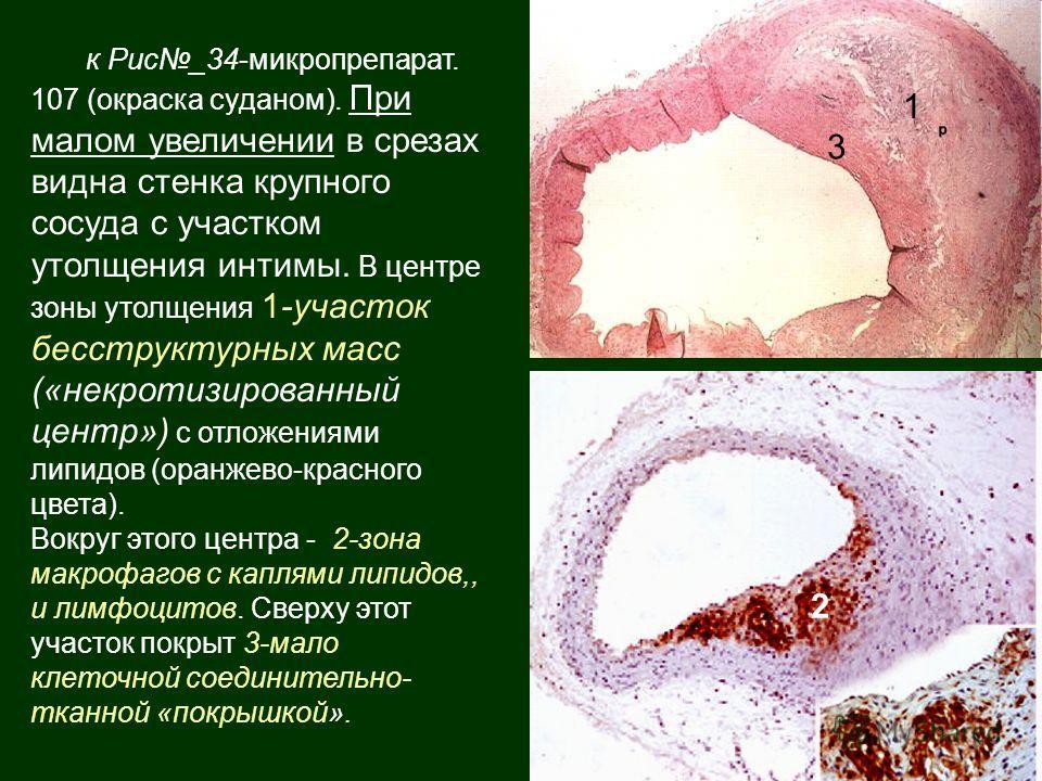 к Рис_34-микропрепарат. 107 (окраска суданом). При малом увеличении в срезах видна стенка крупного сосуда с участком утолщения интимы. В центре зоны утолщения 1-участок бесструктурных масс («некротизированный центр») с отложениями липидов (оранжево-к
