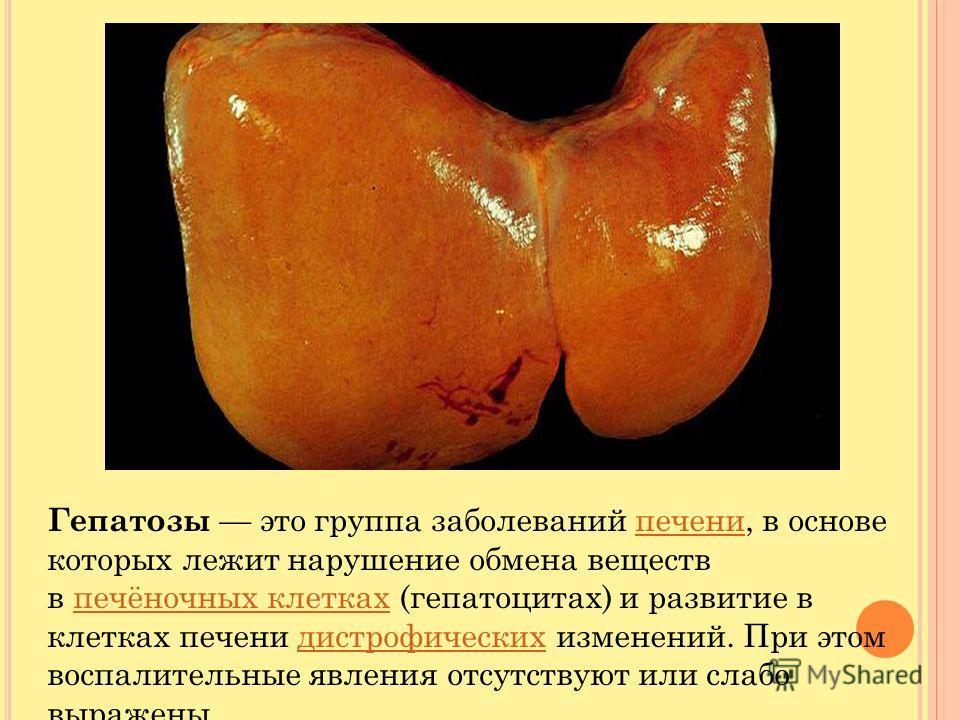 Гепатозы это группа заболеваний печени, в основе которых лежит нарушение обмена веществ в печёночных клетках (гепатоцитах) и развитие в клетках печени дистрофических изменений. При этом воспалительные явления отсутствуют или слабо выраженыпеченипечён