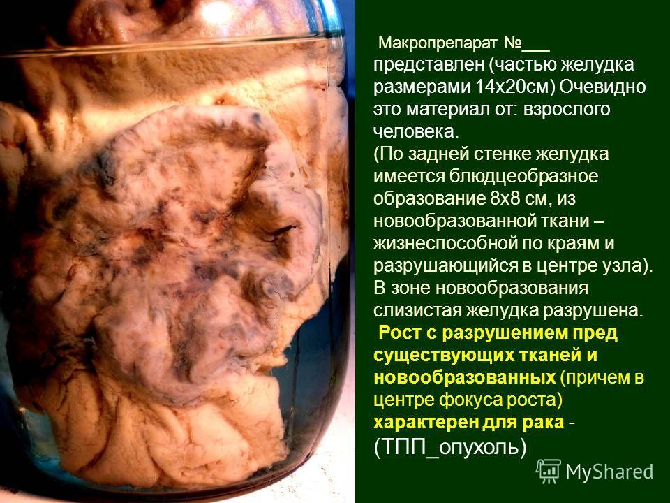 Макропрепарат ___ представлен (частью желудка размерами 14х20см) Очевидно это материал от: взрослого человека. (По задней стенке желудка имеется блюдцеобразное образование 8х8 см, из новообразованной ткани – жизнеспособной по краям и разрушающийся в