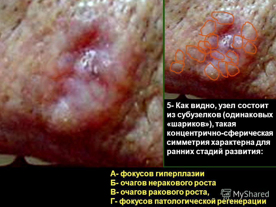 5- Как видно, узел состоит из субузелков (одинаковых «шариков»), такая концентрично-сферическая симметрия характерна для ранних стадий развития: А- фокусов гиперплазии Б- очагов неракового роста В- очагов ракового роста, Г- фокусов патологической рег