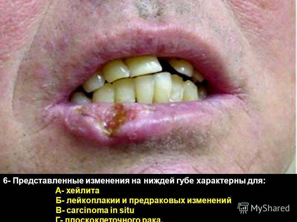 6- Представленные изменения на ниждей губе характерны для: А- хейлита Б- лейкоплакии и предраковых изменений В- carcinoma in situ Г- плоскоклеточного рака,